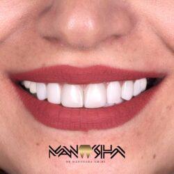 زیبایی دندان در رشت