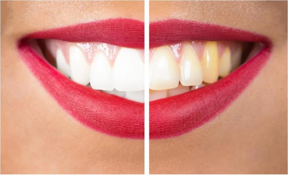 زردی دندان ها