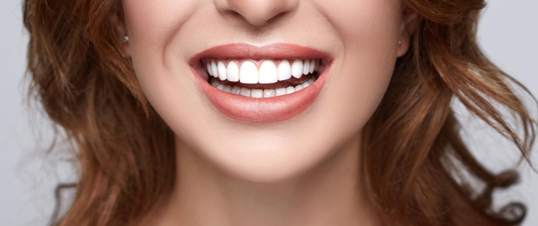 سفید کردن دندان ها در رشت