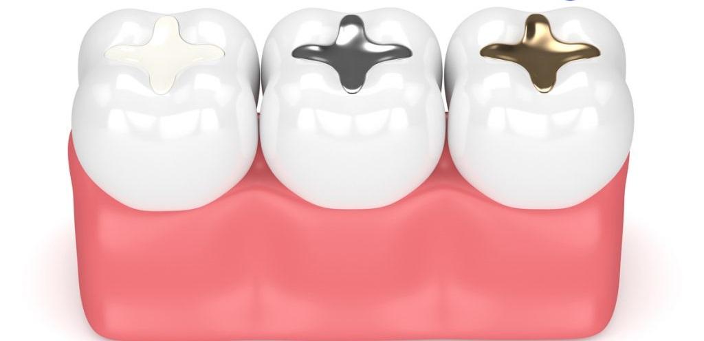 پرکردن دندان رشت