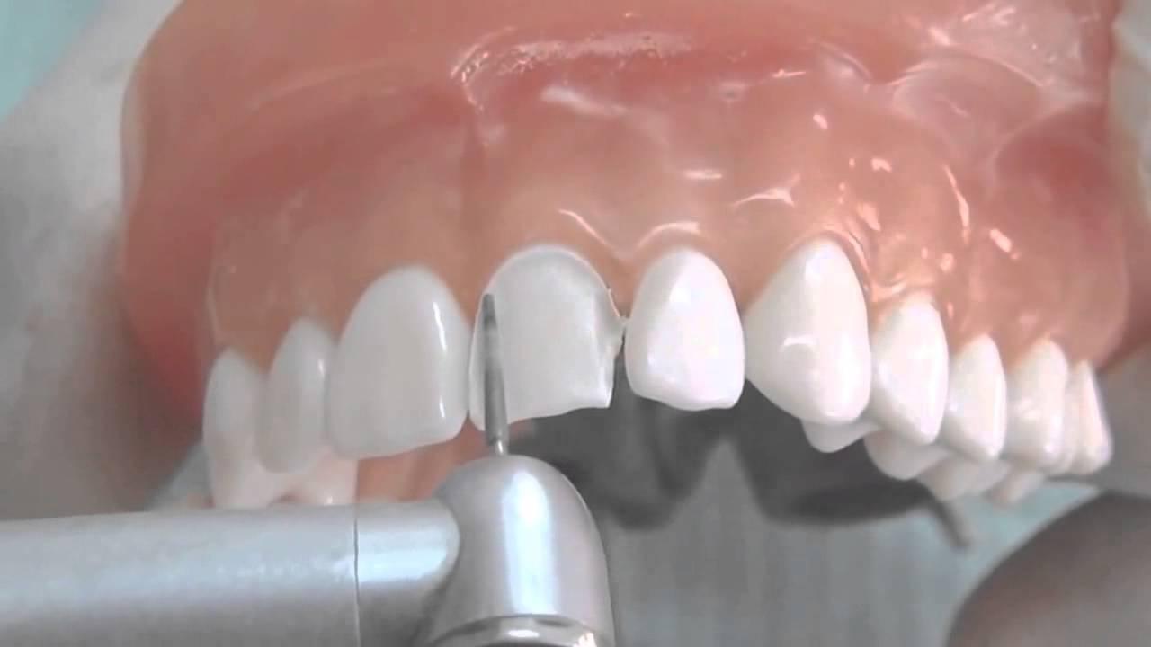 مراحل روکش دندان