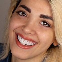 بهترین دندانپزشک زیبایی در رشت دکتر مانوشا امیری