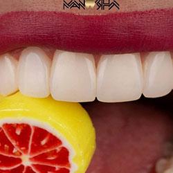 بهترین متخصص ترمیمی دندان رشت دکتر مانوشا امیری
